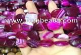 CAA2173 15.5 inches 15*20mm oval banded agate beads wholesale