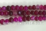 CNG8330 15.5 inches 10*12mm nuggets agate beads wholesale