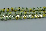 CPB735 15.5 inches 14mm round Painted porcelain beads